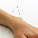 Traditional Chinese Medicine: Acupuncture guide