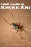 Natural Remedies For Mosquito Bites