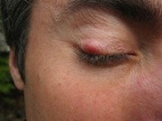 Home Remedies For An Eye Stye