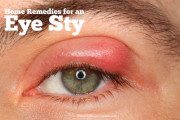 Home Remedies For An Eye Stye