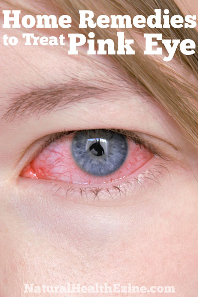 Home Remedies To Treat Pink Eye
