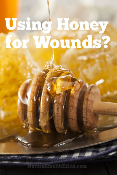 Using Honey For Wounds?