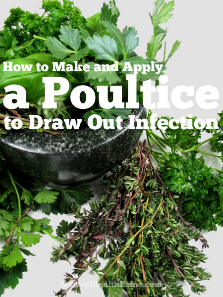 How to Make and Apply a Poultice To Draw Out Infection
